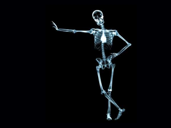 Skeleton X-Ray